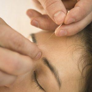 美容鍼について