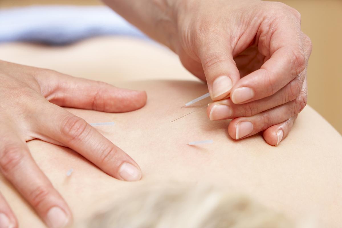 むくみやたるみを改善できる美容鍼灸治療
